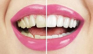 Топ-8 продуктов, меняющих цвет зубов