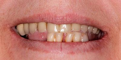 Как укрепить зубы если они шатаются и разрушаются