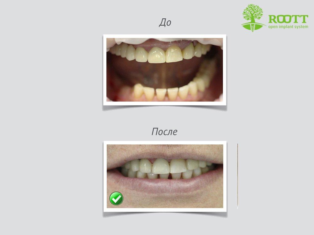 От чего слабые дёсны зубов