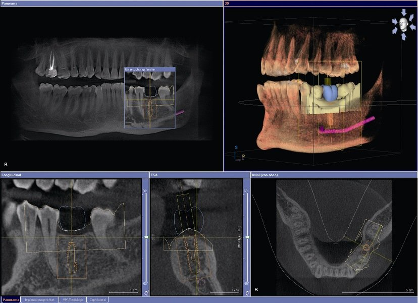 Принципы и этапы имплантации зубов. Фотографии имплантации зубов по этапам.
