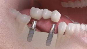 В каких случаях дентальная имплантация зубов это лучшее решение проблем с зубами