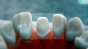 Как проходит подготовка к протезированию зубов?