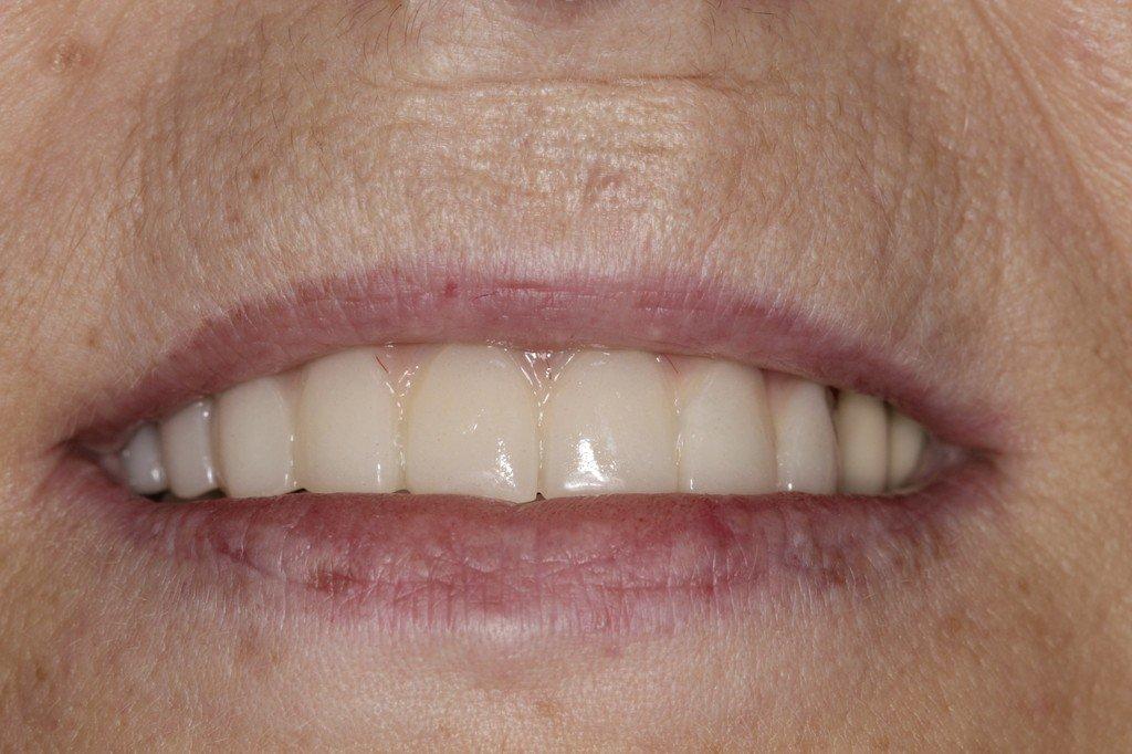 posle_parodontit