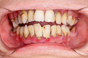 parodontit.jpg