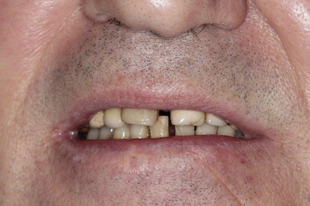 имплантация в корень зуба
