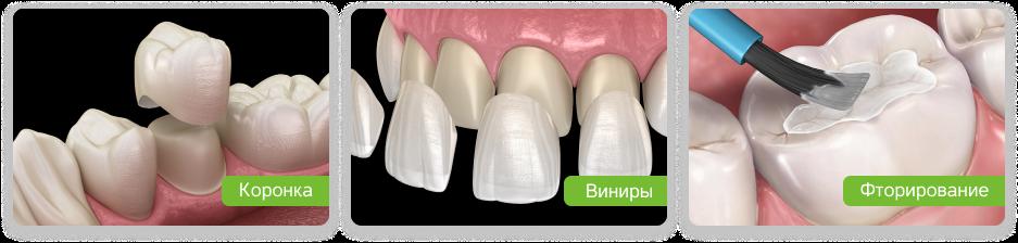 варианты восстановления разрушенного зуба