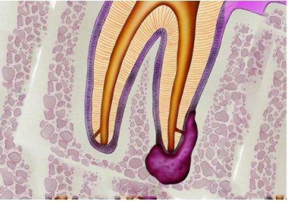Канал кисты зуба
