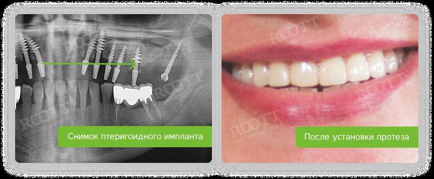 установка птеригоидного импланта