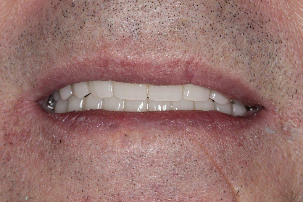 posle_parodontoz.JPG